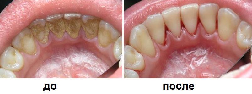 """Как убрать зубной камень между зубами в домашних условиях без вреда - Дюсш 2 """"Юность"""""""